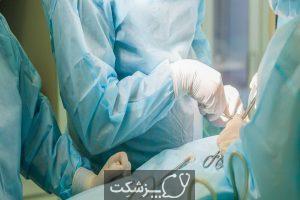 جراحی ایمپلنت آلت تناسلی مرد | پزشکت