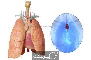سیستم لنفاوی | پزشکت