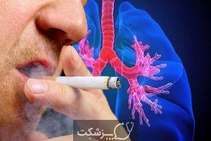 رژیم غذایی برای سرطان ریه | پزشکت