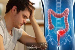 تشخیص بواسیر از سرطان | پزشکت