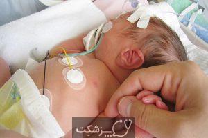 بیماری های مادرزادی | پزشکت