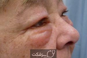 شایع ترین علت ورم صورت   پزشکت