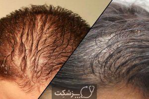 ریزش مو در بیماران کرونایی | پزشکت