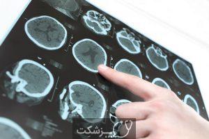 نقص مادرزادی مغز | پزشکت