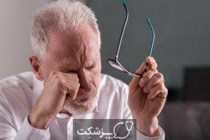 درماتیت پلک و نحوه درمان | پزشکت