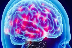 اندورفین و راهکارهای افزایش آن   پزشکت