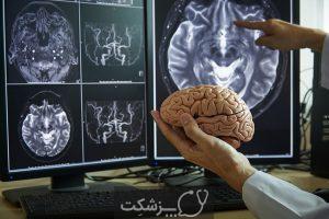 مغز چه زمانی نیاز به جراحی دارد؟ | پزشکت