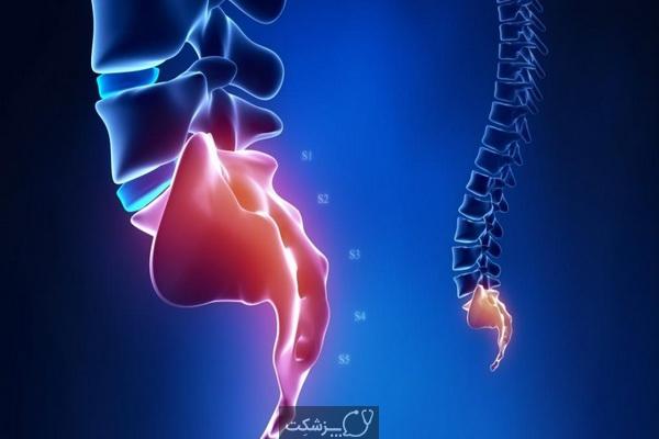 درد در استخوان دنبالچه | پزشکت