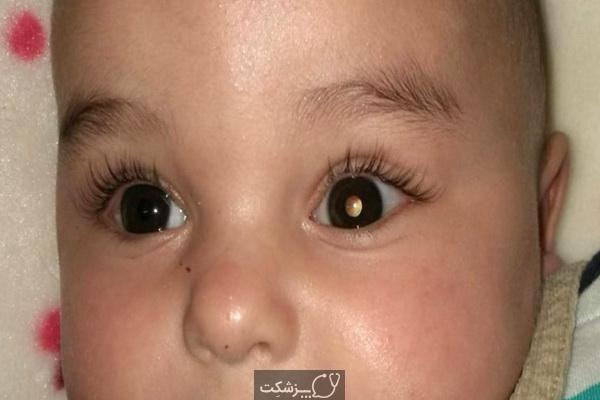 تومور شبکیه در کودکان | پزشکت