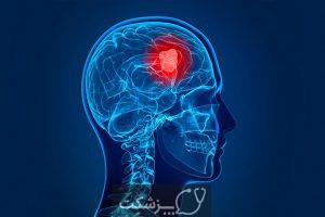 تفاوت بین کیست و تومور چیست؟ | پزشکت