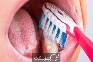 مراقبت های بعد از کشیدن دندان | پزشکت