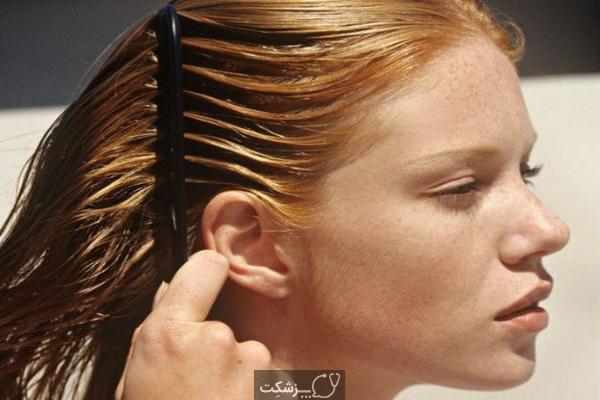 چگونه از پوست سر و موهای چرب خلاص شویم؟   پزشکت