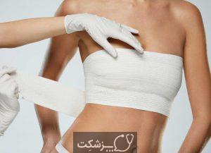 جراحی سرطان پستان | پزشکت