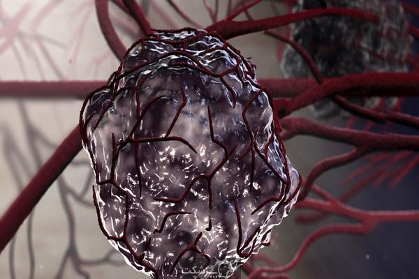 انواع مختلف تومور کدامند؟   پزشکت