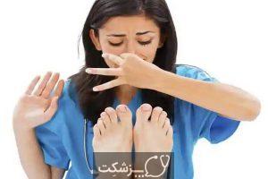 بوی پا   پزشکت