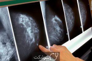 سرطان پستان متاستاتیک | پزشکت
