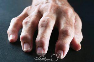 شایع ترین علائم انواع آرتروز زانو | پزشکت