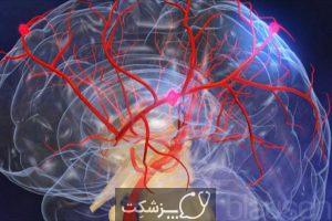 انواع بیماری عروق مغزی | پزشکت