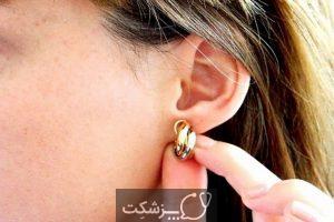 آلرژی به جواهرات چیست؟ | پزشکت