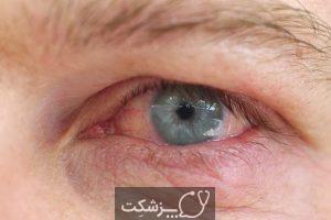 لکه چشمی بعد از آب مروارید | پزشکت