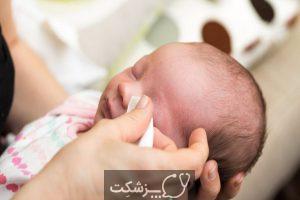 چسبندگی چشم در نوزادان | پزشکت