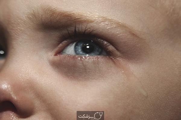 آبریزش چشم در کودکان | پزشکت