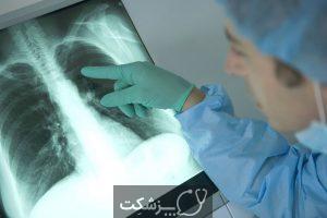 آیا گره یا ندول در ریه خطرناک است؟ | پزشکت