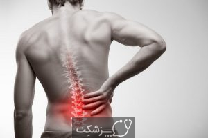 علل و درمان فتق دیسک | پزشکت