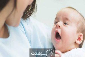 سکسکه در نوزادان   پزشکت