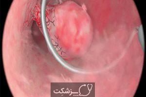 پولیپکتومی یا جراحی برداشتن پولیپ | پزشکت