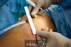 لوبکتومی ریه lobectomy چیست؟ | پزشکت