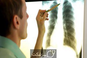 سیلیکوزیس یا بیماری شغلی ریه | پزشکت
