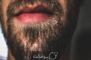 پرپشت کردن ریش ها | پزشکت