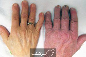 رنگ پریدگی پوست | پزشکت