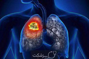 داروی دوروالوماب (Imfinzi)، از عوارض تا کاربرد آن   پزشکت