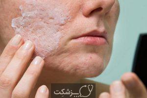 ماسکنه، آخرین عارضه پوستی کرونا ویروس | پزشکت