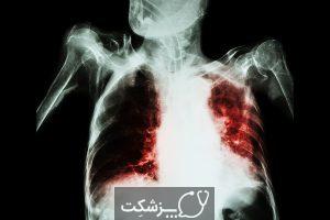 خلط خونی | پزشکت