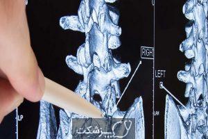 عفونت های ستون فقرات | پزشکت