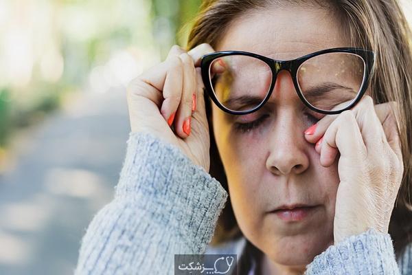 عوارض بیماری کرون در چشم | پزشکت