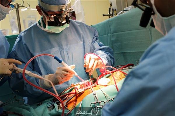 چگونه برای جراحی قلب و عروق آماده شویم؟ | پزشکت