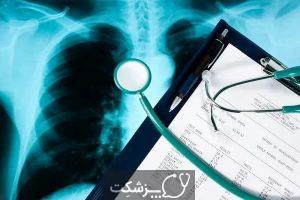 عوارض سرطان ریه | پزشکت
