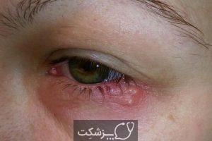 عوارض مایع منی بر روی چشم | پزشکت