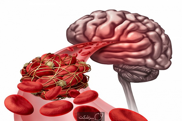 سکته مغزی خونریزی دهنده | پزشکت