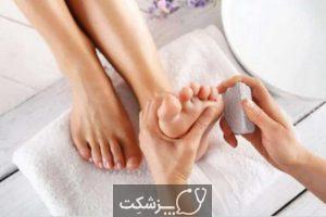 درمان میخچه پا | پزشکت