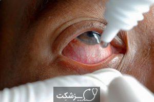 قطره چشمی | پزشکت