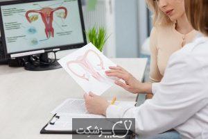 علائم بیماری های رحم | پزشکت