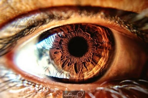 رنگ چشم ها و خطر بروز بیماری ها | پزشکت