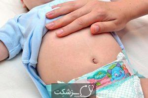 مشکلات گوارشی شایع در نوزادان | پزشکت