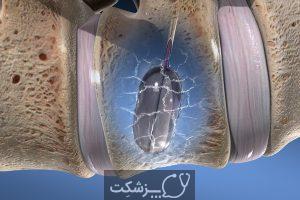 شکستگی کمر یا ستون فقرات | پزشکت