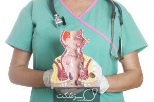 افتادگی رکتوم | پزشکت